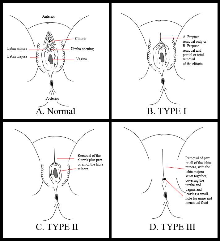 Diversi tipi di mutilazione genitale femminile